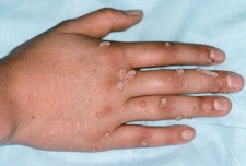 warts on hand